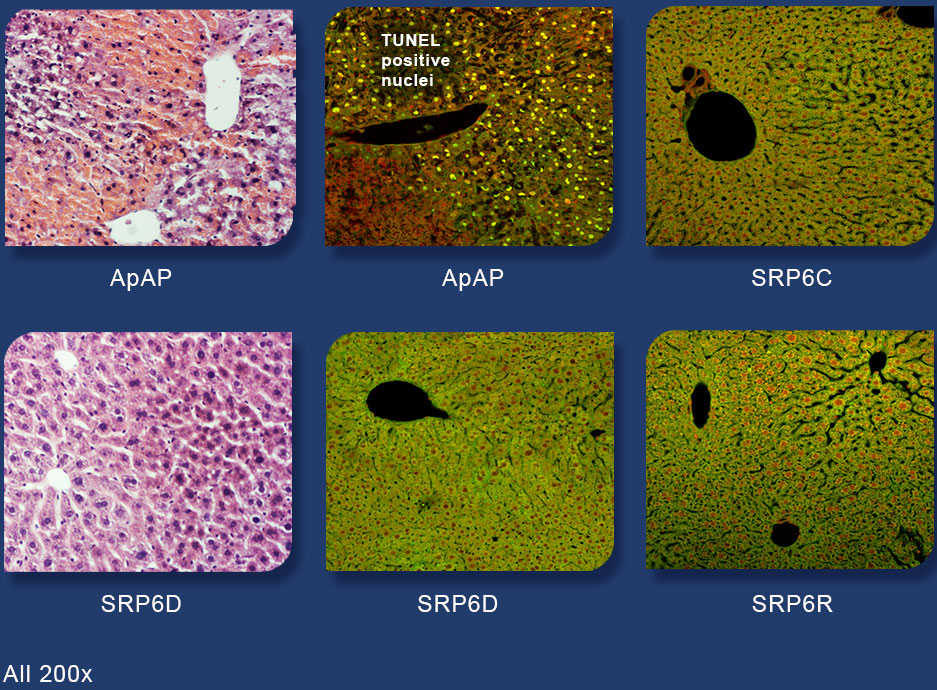 liver cell death images